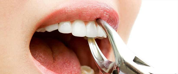 https://www.drthurston.com/Portals/209/SunBlogNuke/1467/Facts about tooth loss.jpg