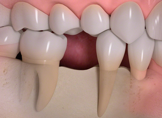 https://www.drthurston.com/Portals/209/SunBlogNuke/1473/Bone loss after the tooth extraction.jpg