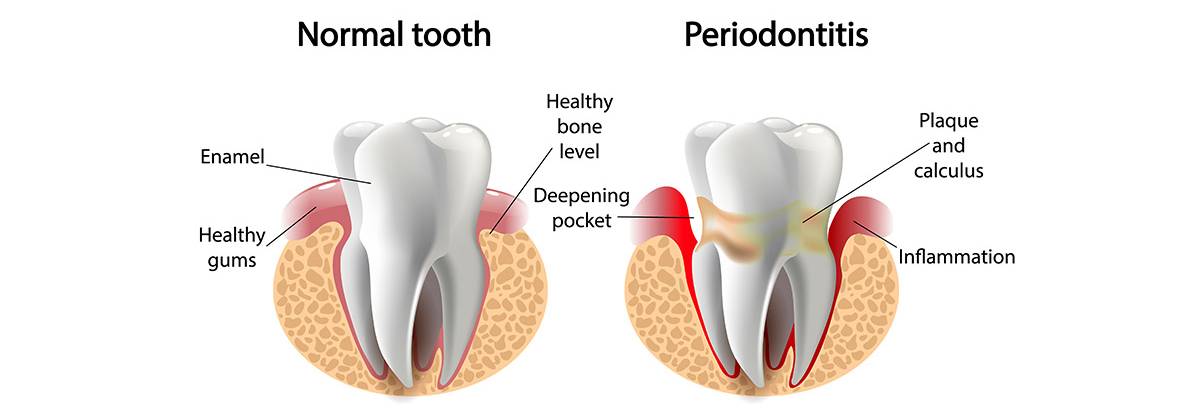 Gum Disease in Auburndale, FL