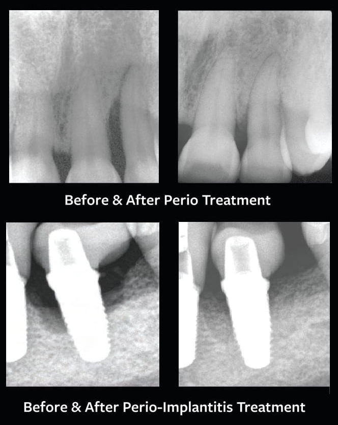 Before And After Implantitis Treatment