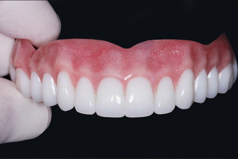 Dentures in Auburndale, FL