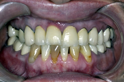 Gum Disease Before Treatment