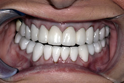 After Gum Disease Treatment
